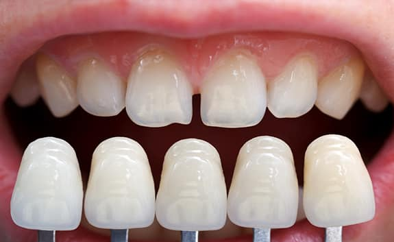 Dental Veneers in Roswell GA