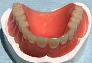 Dentures Roswell GA - Dentist Roswell GA - Sunshine Smiles Dentistry in Roswell Georgia 30075