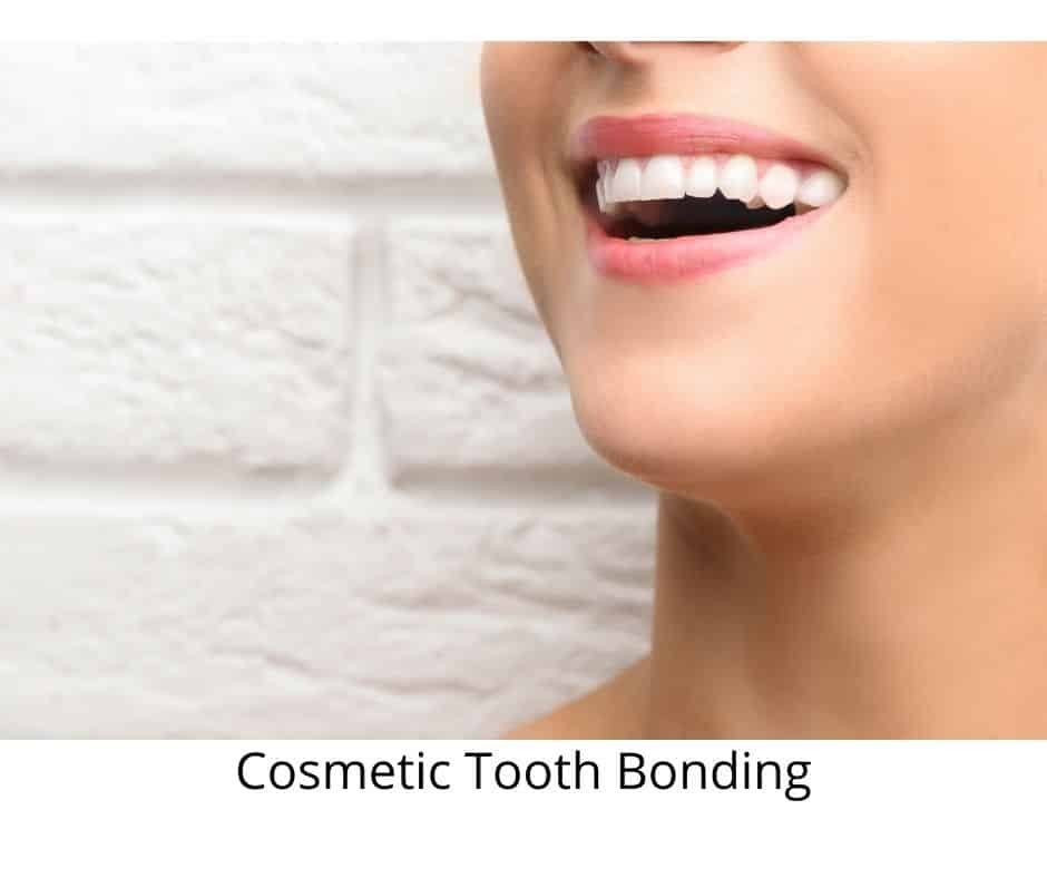 Cosmetic Tooth Bonding - Cosmetic Dentist Roswell, Georgia - Sunshine Smiles Dentistry